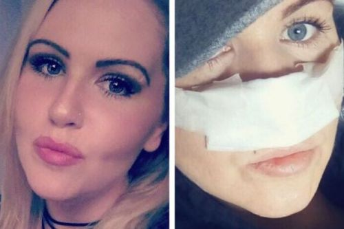 Mum-of-three unable to leave her house for two years after nose surgery 'went wrong'
