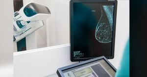 HF from cardiotoxic breast cancer therapies may confer better prognosis vs. other causes