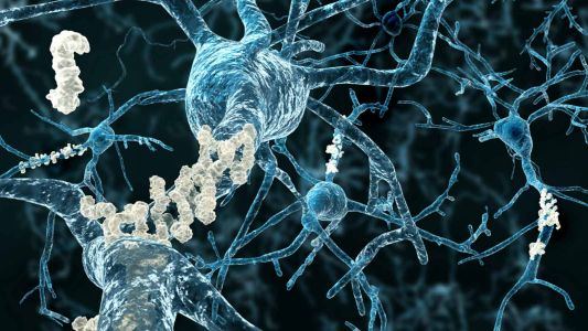 Investigational Alzheimer's Drug Shows Effects in Inherited Early-Onset Disease