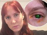 Mother-of-two, 39, nearly blinded after swimming in a pool while wearing CONTACT LENSES