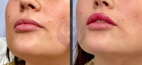 Juvederm: Cost, Side Effects, and What to Expect