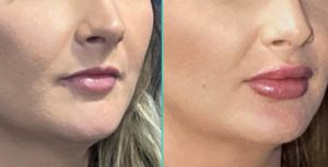 What to expect from your first lip filler treatment