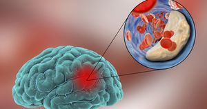 BMI may affect cognitive impairment after stroke