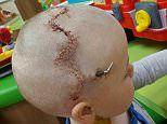 Cardiff five-year-old has a zig-zag scar across his scalp