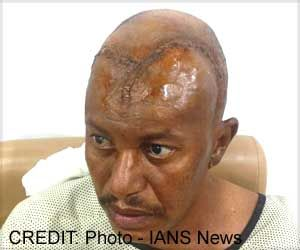 Sudanese Man with Malignant Brain Tumor Treated at Delhi Hospital