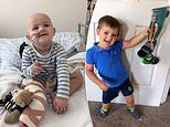 Toddler with cancerous tumour in his knee has leg amputated and reattached BACKWARDS