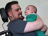Father will finally get a bionic arm so he can bond with his baby