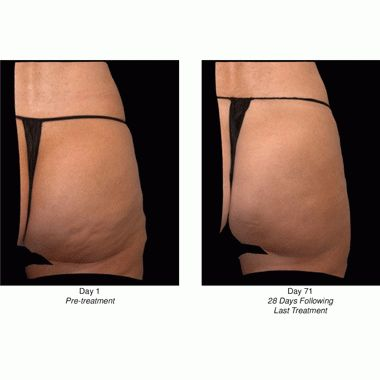 Phase 3 Data on CCH for Cellulite