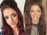 Meg Sheppard claims contraceptive implant triggered an anorexia battle