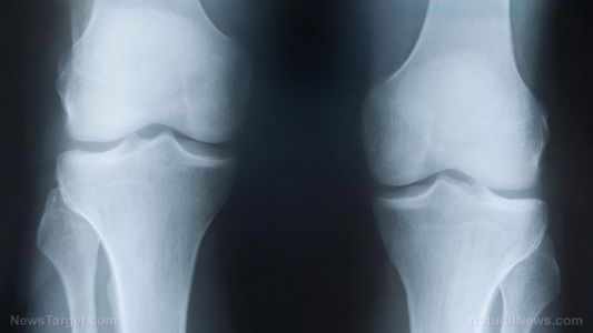 Use it or lose it: Study shows taking 6,000 steps a day reduces risk of functional mobility loss due to osteoarthritis in the knees