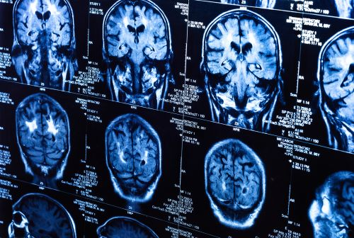 Study Shows Brain Structures Make Some People Resilient to Alzheimer's Disease