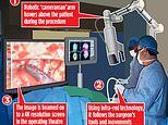 Brain surgeons using robotic 'cameraman' to beam HD-TV footage of intricate procedures onto screens