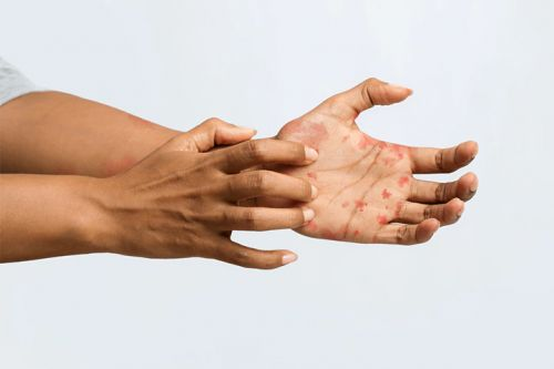 Dermatology Reckoning With Long-Standing Racial Inequities