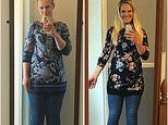 Women with 'tree-trunk' legs caused by lipoedema may be given liposuction on NHS