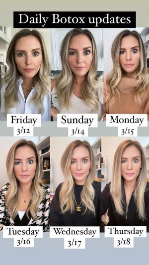 Blogger Opens Up About Her Experience With Ptosis -- A Rare Botox Side Effect