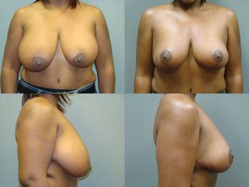 Breast Reduction for Your Health