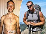 Man, 35, discovers he has end-stage heart failure and now has mechanical heart keeping him alive