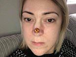 Mother, 37, discovered the 'spot' on the end of her nose was actually CANCER