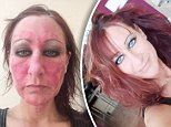 Mother-of-two looked like an 'acid attack victim' after ditching steroids
