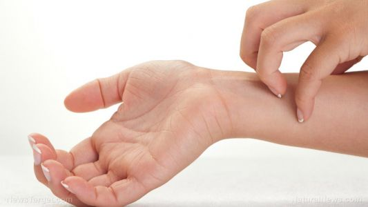 A closer look at the effects of cannabidiol on psoriasis symptoms