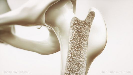 Can intermittent fasting lower your risk of osteoporosis?