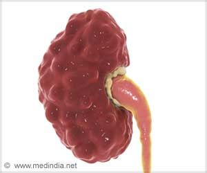 Link Between Kidney Damage from COVID-19 and Higher In-hospital Death Risk