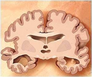 Areas of the Retina That Change in Mild Alzheimer's Disease Discovered