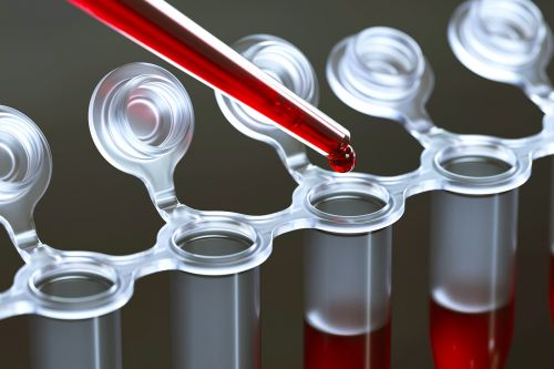 Blood Tests Show Exposure to Ethylene Oxide