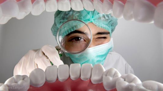Are your dental fillings making you sick? The mercury in them could be destroying your gut