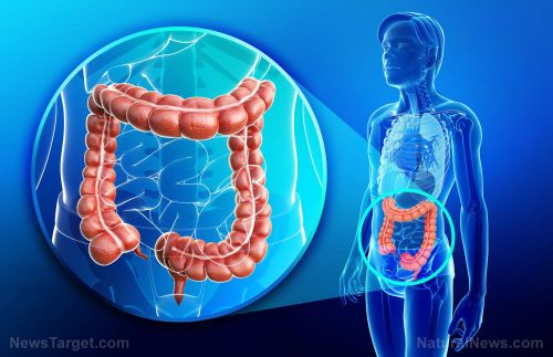 Colorectal cancer is a microbial disease: Changes in the gut microbiome can be used for early detection