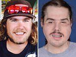 California man, 26, who tried to kill himself receives face transplant in NYC 25-hour surgery