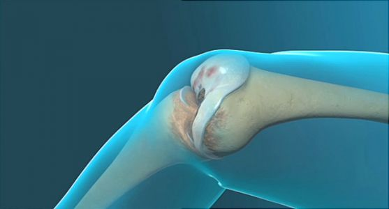 Why a Knee Replacement Can Go Bad