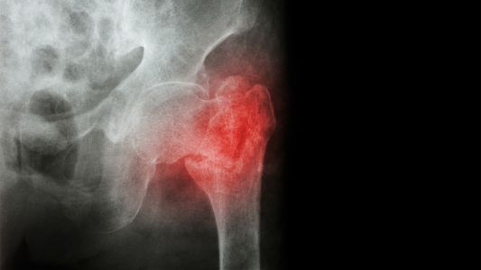 Fracture Risk in RA: 'Reassuring' Results for Biologics, Synthetic Agents