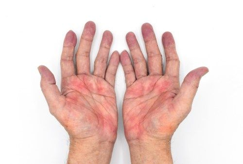 Palmar Erythema and How it Affects Pregnancy