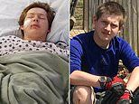 Kansas teen, 15, survives after falling on a 10-inch knife whichimpaled his face and skull