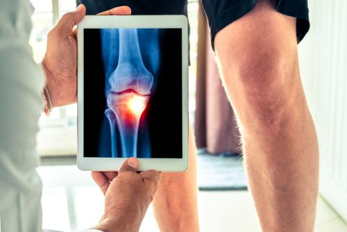 Eggshell membrane cuts osteoarthritis knee discomfort in large scale clinical trial