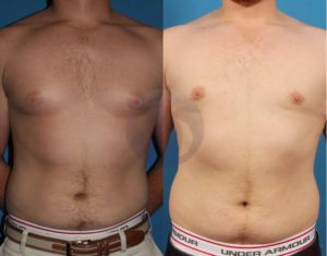 What Men Need to Know Before Having Gynecomastia Surgery