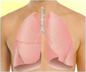 Blood Test can Detect Early Lung-Transplant Rejection