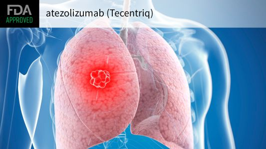First Adjuvant Immunotherapy OK'd in Non-Small Cell Lung Cancer
