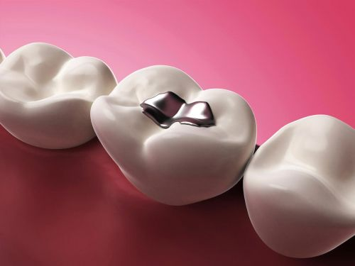 Those metal fillings in your mouth could be putting you at risk of an autoimmune disease