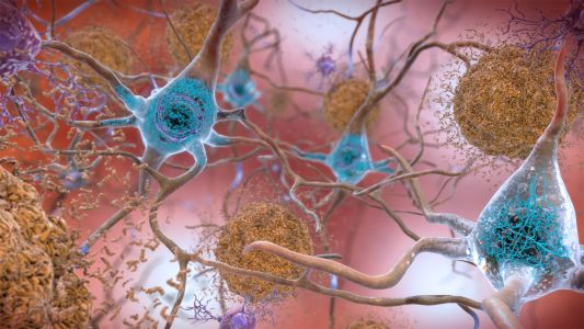 Defining Alzheimer's: Should Cognitively Unimpaired People Be Included?
