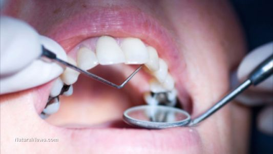 Is your mouth poisoning your body? Studies show that people with toxic levels of mercury usually get it from their fillings