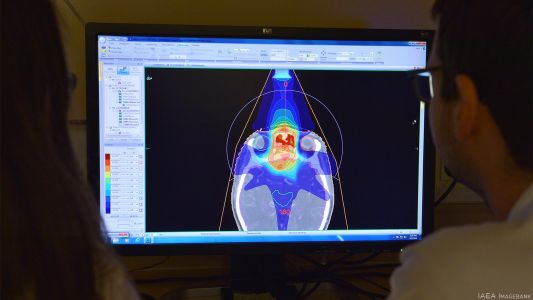 AI for Radiation Therapy Works, but Is it Fully Trusted?