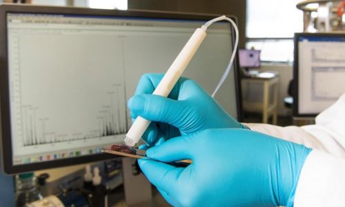 Cancer detection pen spots cancer chemicals in seconds