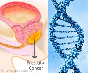 Prostate Cancer Risk Can Be Lowered by Statins