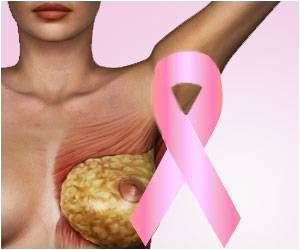 Migraine Drug can Help Fight Back Breast Cancer