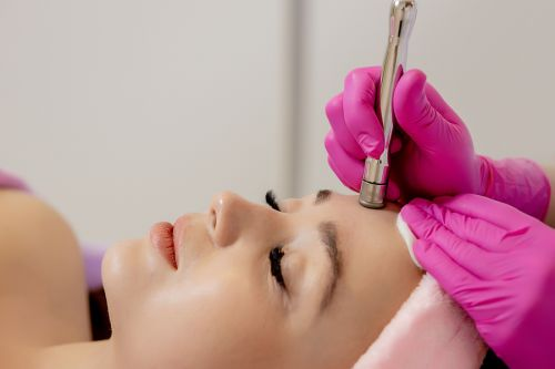 Microdermabrasion Treatments: 9 Things to Know