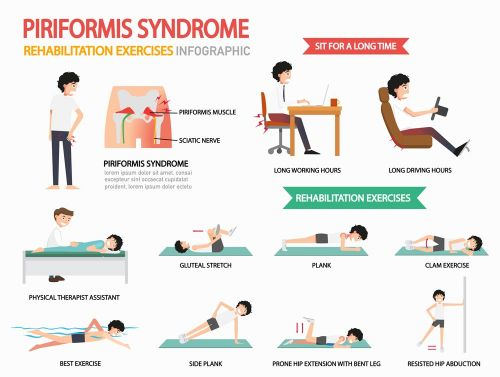 Pain in the Buttocks? It Could Be Piriformis Syndrome