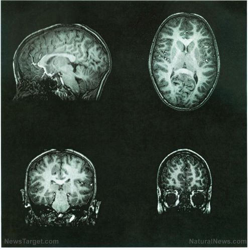 Neurological damage linked to Alzheimer's may be repaired with dietary supplementation