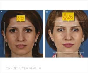 Nose Job: Cosmetic Nose Surgery can Make You Look Younger